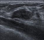 Breast US Fibroadenoma 0531093151890 Nevit.jpg
