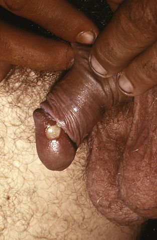 A white sore with red borders on the head of a penis.