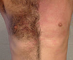Chest waxing cropped.jpg