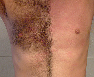 Waxing - Male chest before and after waxing.