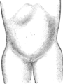 Corset1908 132Fig66.png