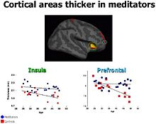 Cortical Areas Thicker in Meditators .jpg