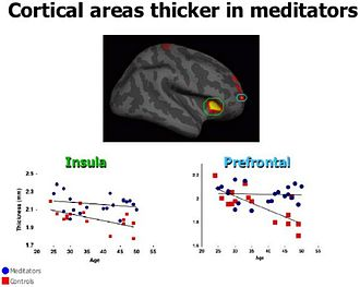 Research on meditation - Image: Cortical Areas Thicker in Meditators