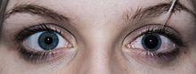 Pupillary response - WikipediaDilated Pupils Drugs Miosis