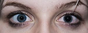 Adaptation (eye) - In this subject of a dilated fundus examination, the eye on the left is undilated, and the eye on the right has been dilated using a mydriatic eyedrop.