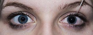 Adaptation (eye) response of the eye to light and dark