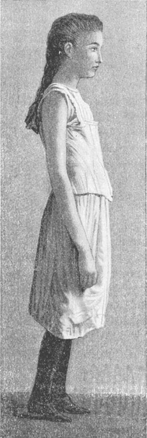 Training bra - A 19th-century illustration of a young girl wearing a camisole; prior to c. 1950, this was typical wear for pre-pubescent girls