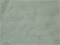 Genicularia spores 160X.png
