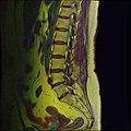 Lumbosacral MRI case 11 05.jpg