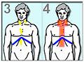 LymphomeHodgkinRadiotherapie3.jpg