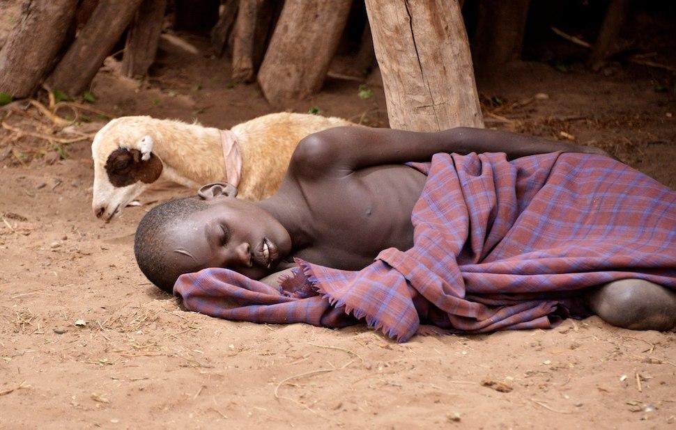 Malaria Patient, Nyangaton, Ethiopia (15151075077)