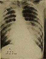 Röntgenbild einer Lunge mit sichtbaren Rippen, die Lungenentzündung wird durch dunkle Stellen sichtbar gemacht, welche einen großen Teil, vermehrt aber im oberen Bereich der Lunge sichtbar sind