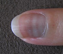 ابيضاض الأظافر ويكيبيديا