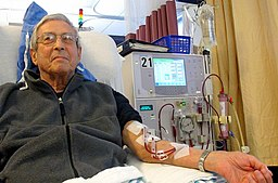 Patient receiving dialysis 03
