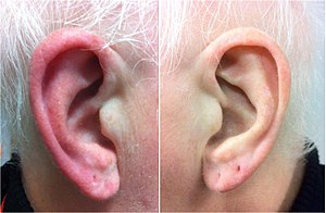 Red ear syndrome - A red ear syndrome attack, with affected ear on the left