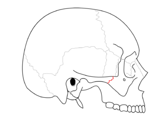 Zygomaticotemporal suture - Zygomaticotemporal suture (red)