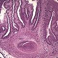 Taenia solium cyst.jpg