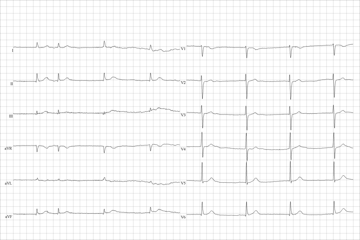 Above And Beyond Nomination furthermore Beta Blockers In Cardiology Practice additionally Sick sinus syndrome together with 636 in addition 344. on pacemaker patient