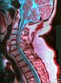 Cervical MRI 115114 rgbca 46m.png