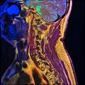 Cervical spine MRI T1FSE T2frFSE STIR 02.jpg