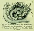 Die Frau als Hausärztin (1911) 063 Vorwärts-Knickung der Gebärmutter.png