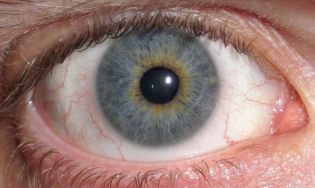 File Eye Central Heterochromia crop and lighter