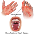 Hand Foot & Mouth Disease.png