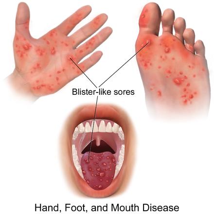 hand fuß mund krankheit kind