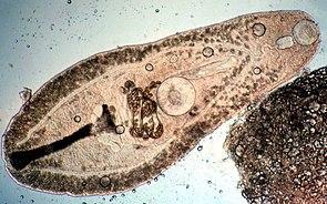 Der Saugwurm Helicometra, der im Verdauungstrakt von Kardinalbarschen lebt.