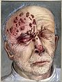 Herpes rash in 75-year old man; sketch showing blister distr Wellcome V0036376ET.jpg