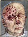 Herpes rash in 75-year old man; sketch showing blister distr Wellcome V0036376ET.jpg