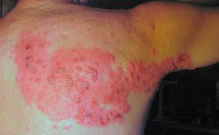 shingles jab moles warts homeopathy