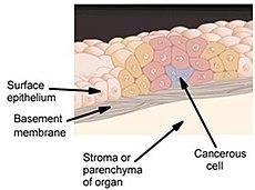 Karcinoma in situ
