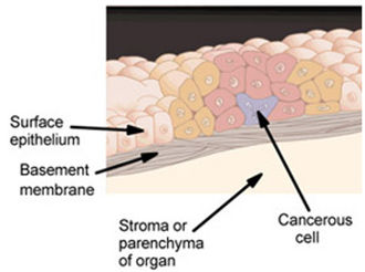 "In situ - In addition to benign tumors, there are in situ tumors and invasive tumors. In situ tumors do not invade the basement membrane, whereas invasive tumors do invade the basement membrane."" Diagram of an in situ carcinoma"