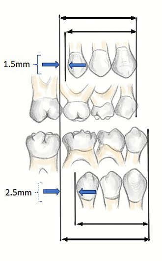 Occlusion (dentistry) - Leeway space is the size differential between the primary posterior teeth (C,D,E) and the permanent teeth (canine, first and second pre-molar).  Maxillary space of 1.5mm, mandibular 2.5mm can be seen. (Institute of Dentistry, Aberdeen University)