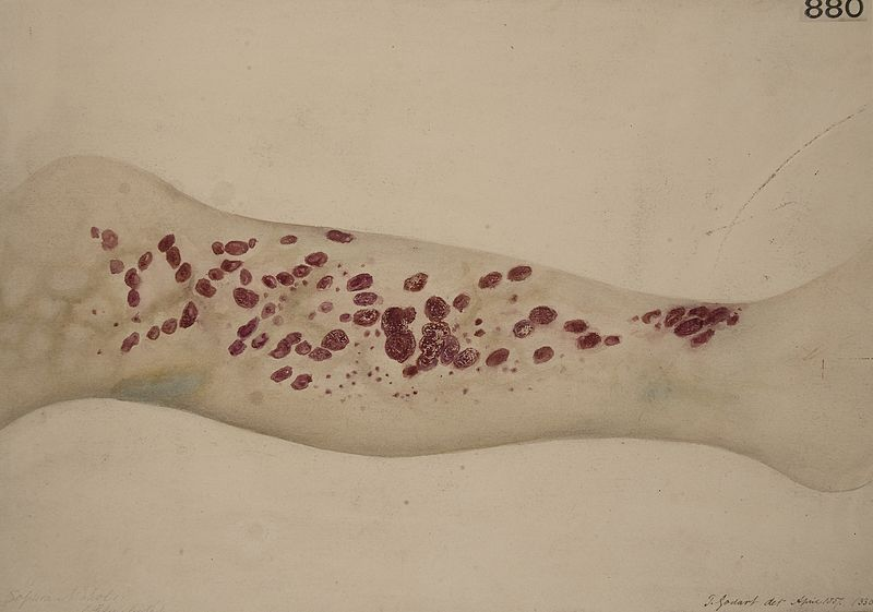 File:Leg of a patient with scorbutus (scurvy), 1887 Wellcome L0062031.jpg