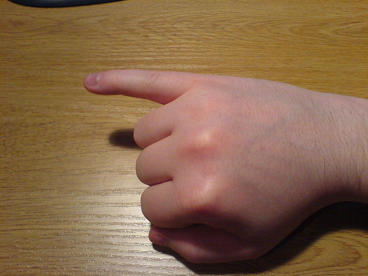 broken-index-finger-cast