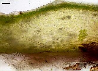 Marchantiales - Image: Liverwort cross section