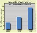 Maladie Alzheimer1.jpg