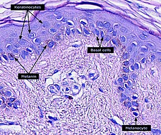 Keratinocyte Primary type of cell found in the epidermis