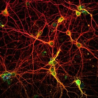 Neuronal web.tif