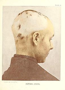 patologia in cui la repentina caduta dei capelli, o di altri peli del corpo, si manifesta tipicamente a chiazze glabre o aree, da cui il nome