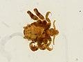 Pthirus pubis (YPM IZ 093650).jpeg