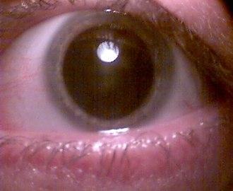 Pupil - Iris dilated for retina examination