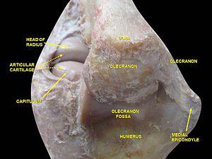 Medial epicondyle of the humerus - Image: Slide 2bgbg