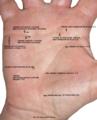 Рис.10. Щитовидная железа, сердце.png