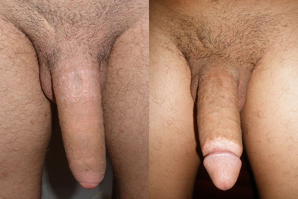 before and after photos of adult circumcision