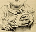 An American text-book of the diseases of children (1895) (14781998142).jpg