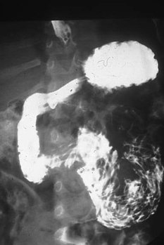 Ascaris infection in X-ray image- Duedenal worms - in the first portion of the bowel after the stomach (South Africa) (16238958958).jpg