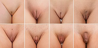 Clitoral hood - Variation between women in the development of the clitoral hood: Top row: the clitoral hood of these women is covered by the labia majora when standing upright Bottom row: women with protuding clitoral hood
